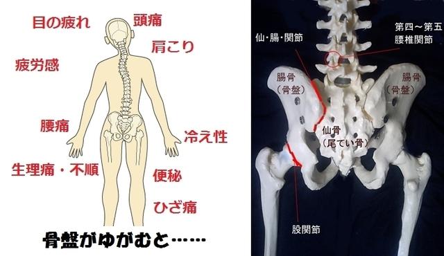 骨盤の歪み.jpg